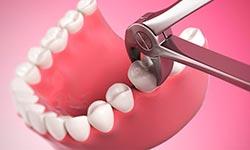 udalenie-zubov-usluga